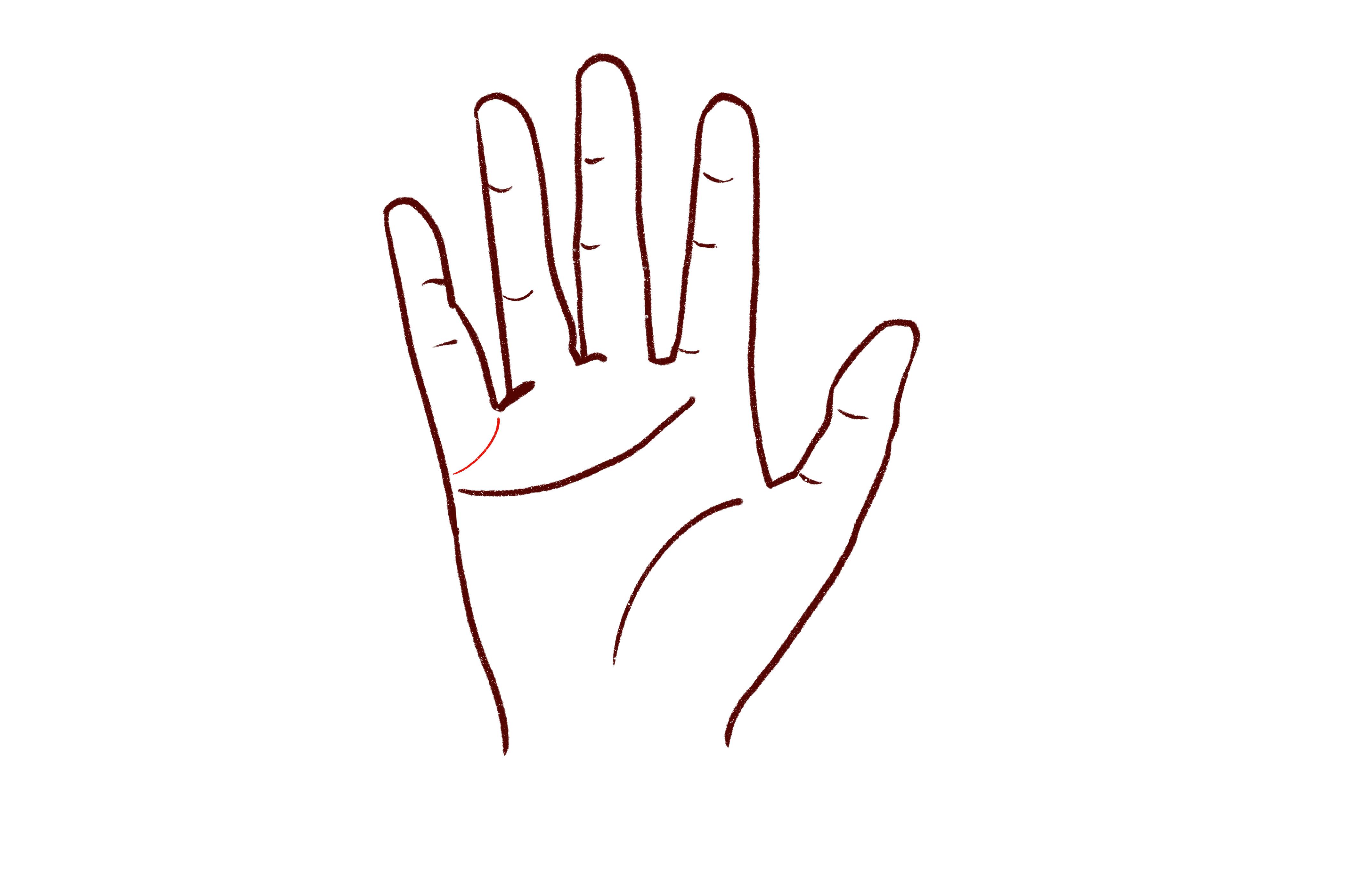 婚姻线弯向小指根部、呈链状