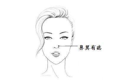 女人鼻子有痣好吗?婚姻不美,夫妻之间多争吵