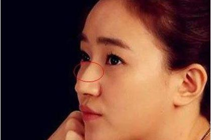 鼻梁有节,喜欢感情用事的女人面相分析