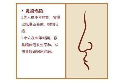 塌鼻梁的女人挥霍无度,命不好是真的吗?