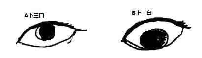 男人三白眼面相戾气重,是克妻之相?