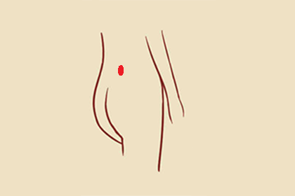 胎记长在腰上好吗,代表什么含义?