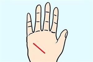 手相有健康线一定代表身体不健康吗?