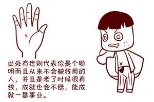 痣相分析手掌what位置长痣好?手心长痣的人运势好!