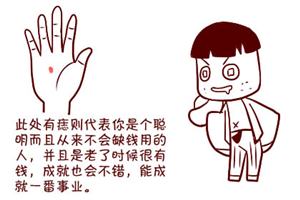 手相分析手掌正中心有痣好不好?是大吉大利之相吗