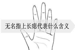 无名指上长痣代表什么含义