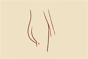 大腿根有痣的女人代表什么,生活幸福美满?